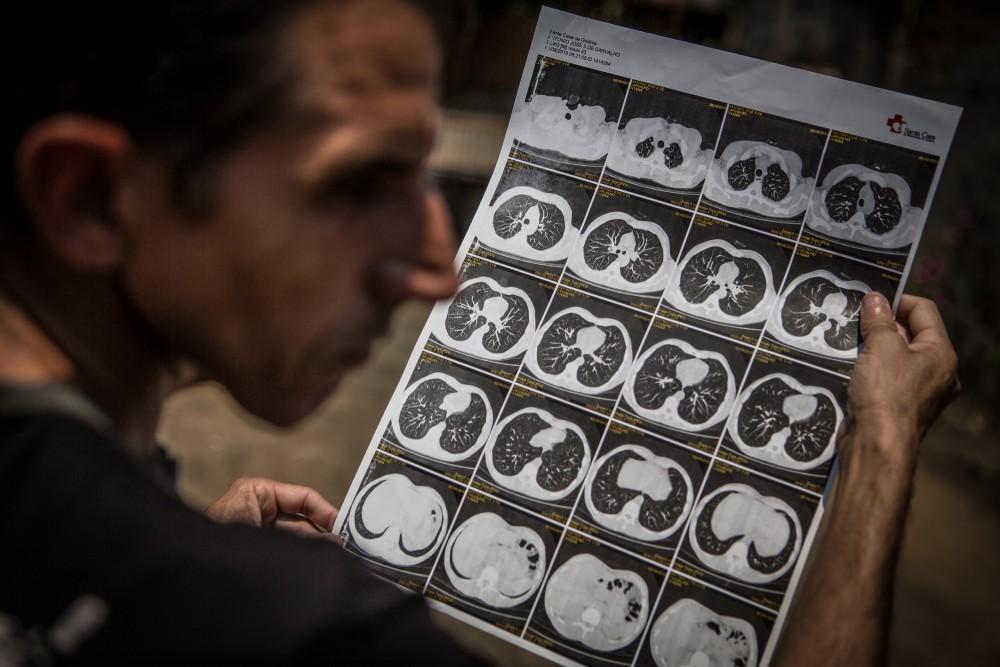 Antonio José Severino de Carvalho, de 44 anos, ex-funcionário da mineradora Sama, mostra seus exames mostrando resultados da abestose em seus pulmões.